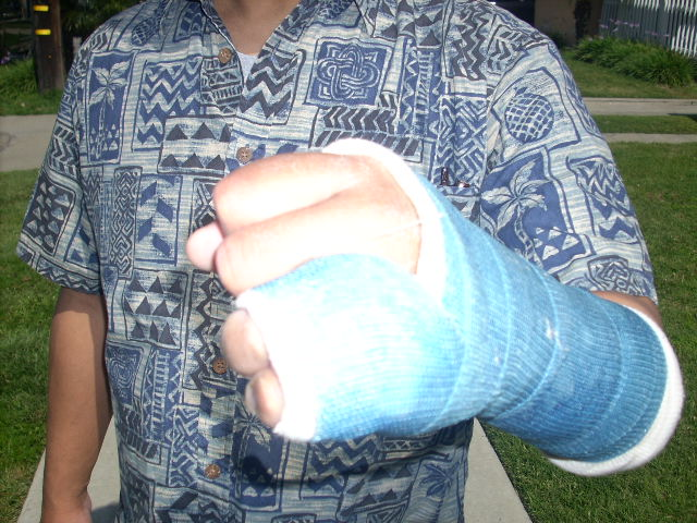 left hand in cast