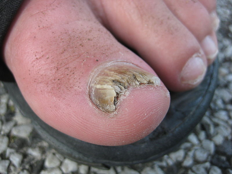 fungal big toe nail