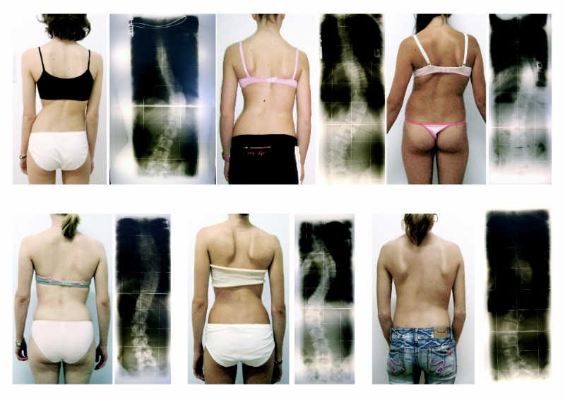 Five different types of scoliosis